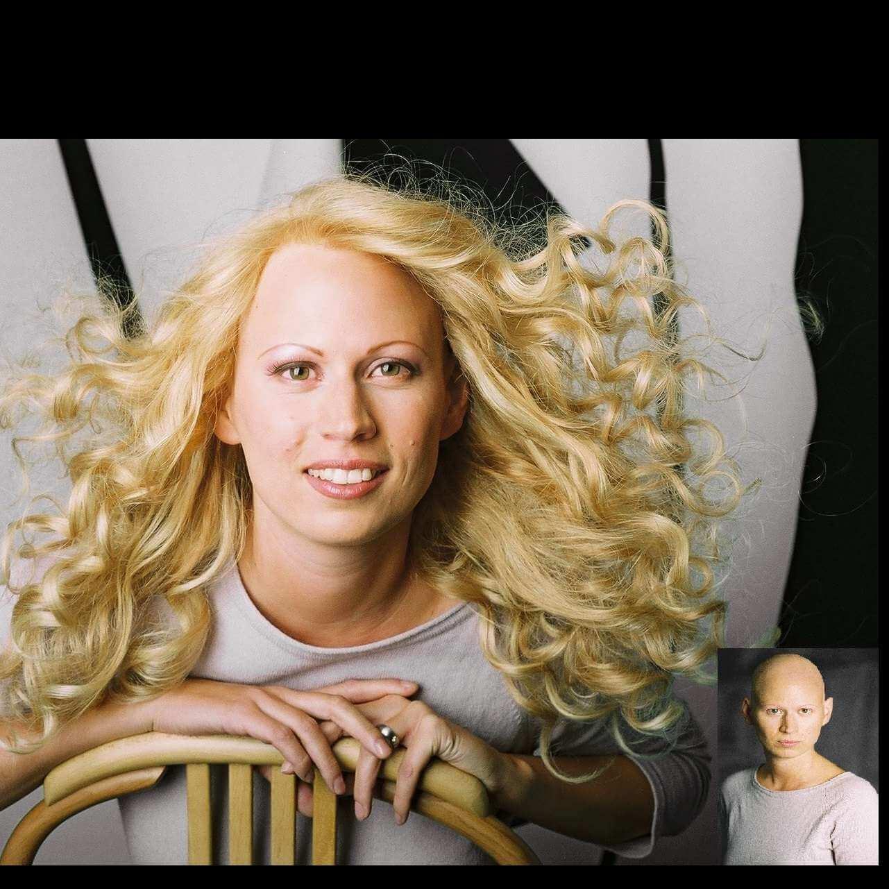 1564659487098_alopecia